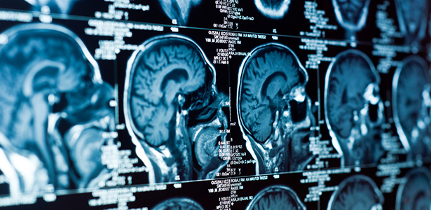 neuroimaging a slippery slope